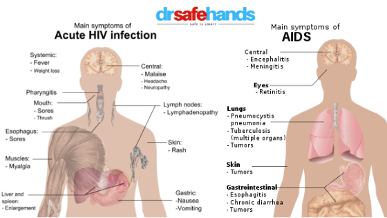 symptoms of HIV & AIDS