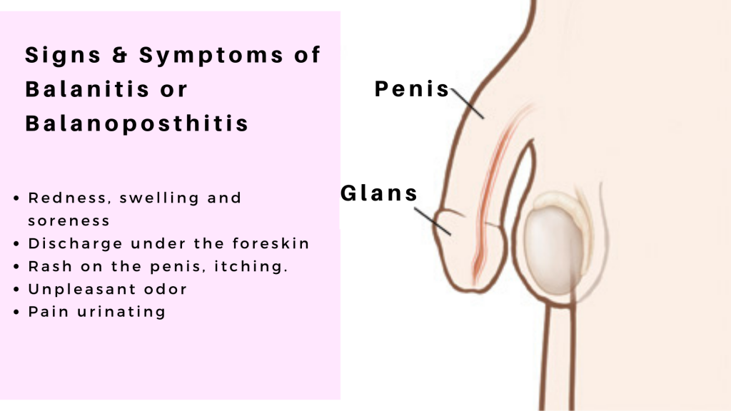 Signs & Symptoms of Balanitis