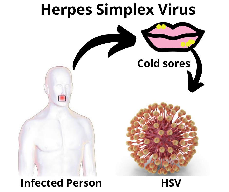 HSV Infection Circle